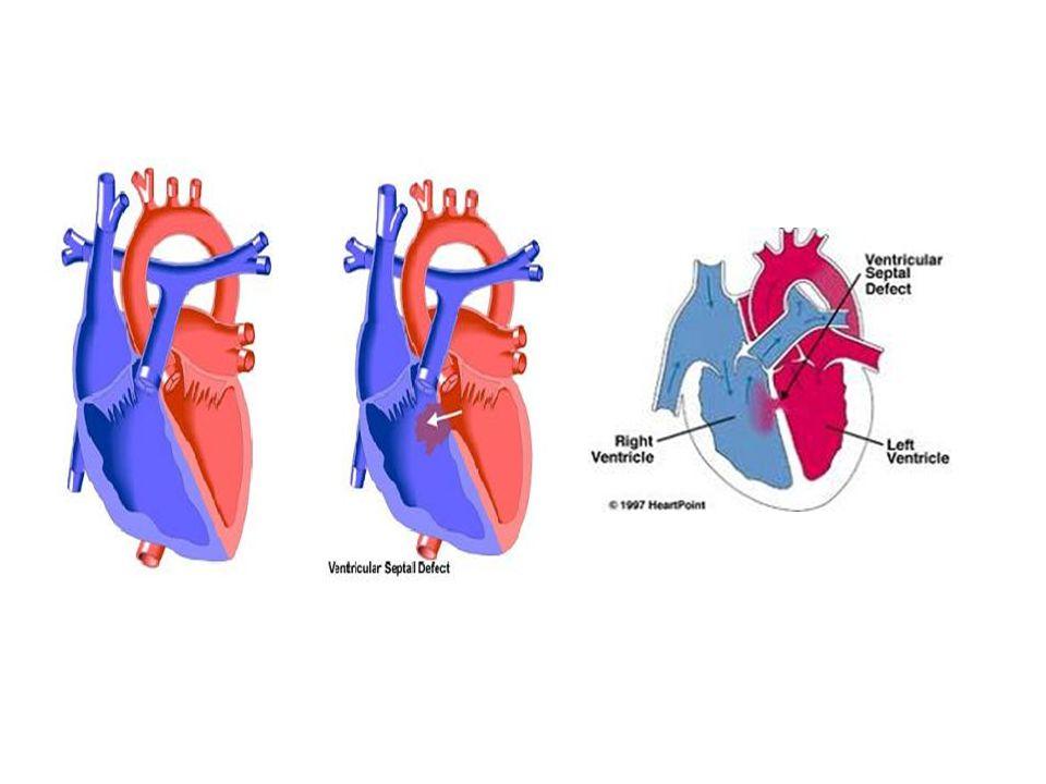 VSD MORFOLOJİK SINIFLAMA Yerleşim Perimemranöz %80 Subarteryel %5-10 ( Juxta- arteryel, conal, infundibular) Musküler %5 İnlet septal <%5 (AV kanal, AV septal) Komşulukları Triküspid kapak, ileti sistemi (posteroinferior) Her iki semilunar kapakla (Sağ koroner kusp) Tüm sınırları kaslarla çevrili ileti sistemi (posteriorinferior)