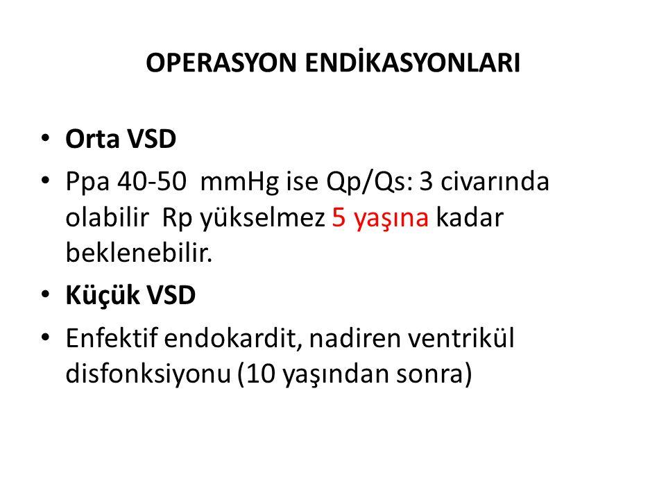 OPERASYON ENDİKASYONLARI Orta VSD Ppa 40-50 mmHg ise Qp/Qs: 3 civarında olabilir Rp yükselmez 5 yaşına kadar beklenebilir. Küçük VSD Enfektif endokard