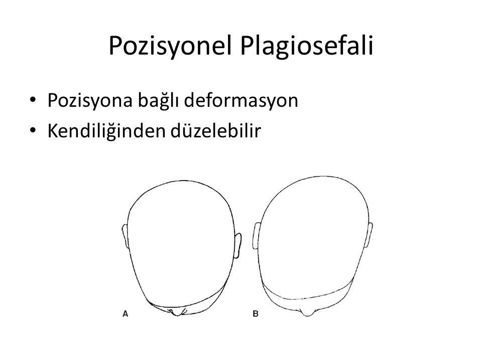 Pozisyonel Plagiosefali Pozisyona bağlı deformasyon Kendiliğinden düzelebilir