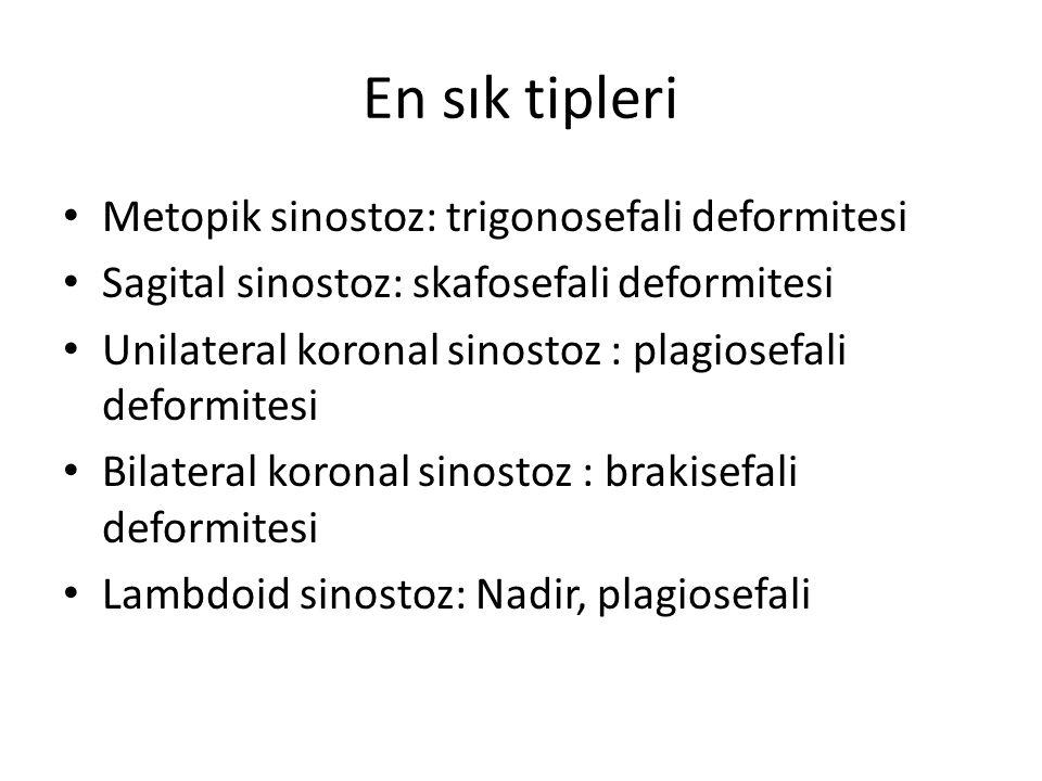 En sık tipleri Metopik sinostoz: trigonosefali deformitesi Sagital sinostoz: skafosefali deformitesi Unilateral koronal sinostoz : plagiosefali deform