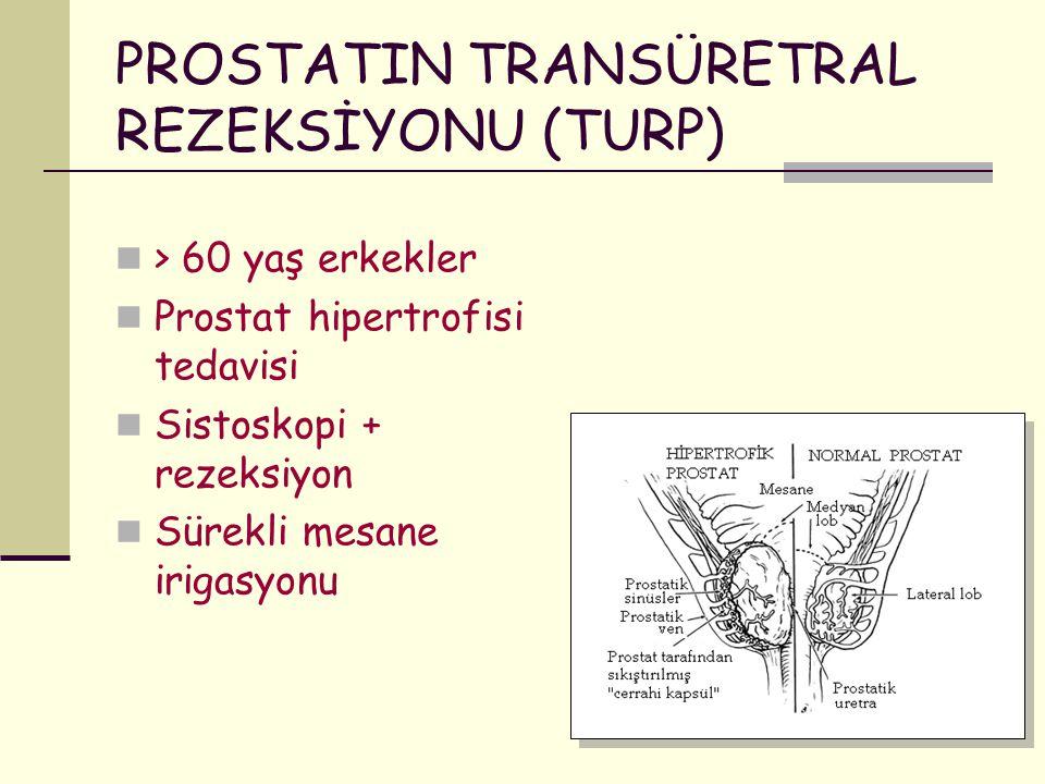 PROSTATIN TRANSÜRETRAL REZEKSİYONU (TURP) > 60 yaş erkekler Prostat hipertrofisi tedavisi Sistoskopi + rezeksiyon Sürekli mesane irigasyonu