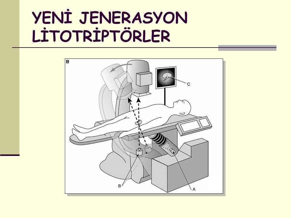 YENİ JENERASYON LİTOTRİPTÖRLER