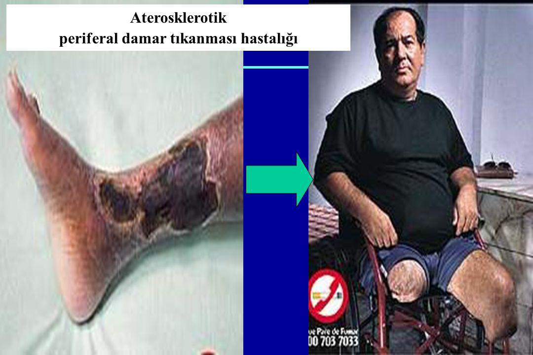 Aterosklerotik periferal damar tıkanması hastalığı