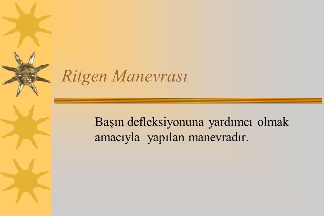 Ritgen Manevrası Başın defleksiyonuna yardımcı olmak amacıyla yapılan manevradır.