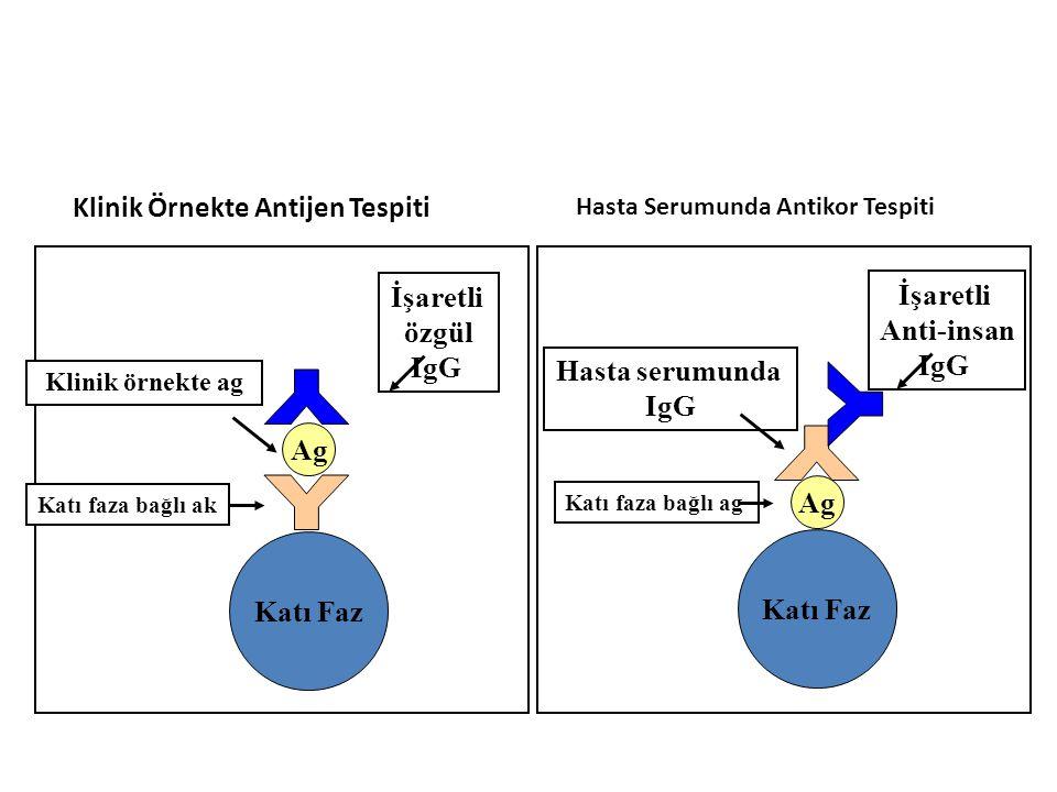 Katı Faz Ag Katı faza bağlı ag Hasta serumunda IgG İşaretli Anti-insan IgG Katı Faz Ag Katı faza bağlı ak Klinik örnekte ag İşaretli özgül IgG Klinik