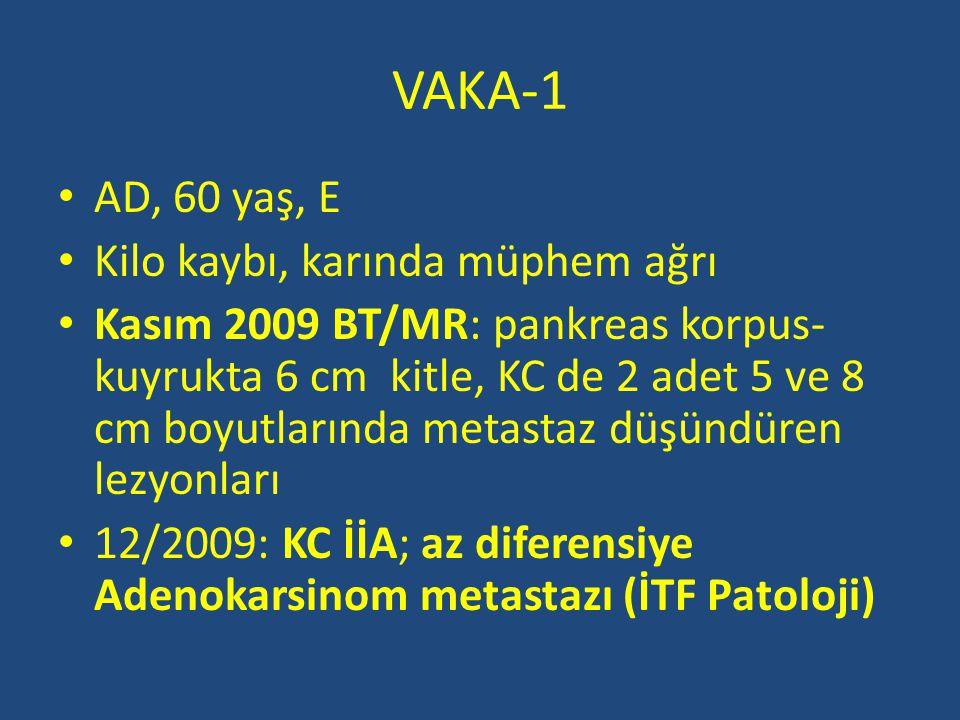 VAKA-1 AD, 60 yaş, E Kilo kaybı, karında müphem ağrı Kasım 2009 BT/MR: pankreas korpus- kuyrukta 6 cm kitle, KC de 2 adet 5 ve 8 cm boyutlarında metas