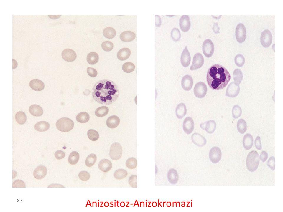 33 Anizositoz-Anizokromazi