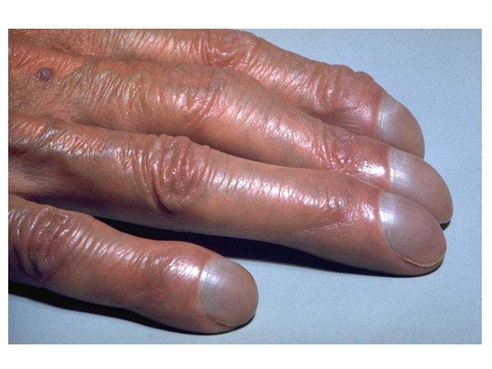 Artmış > 11 000/mm 3 Lökositoz TANI Nedeni belli olmayan nötrofili (± sola kayma) İzole hafif nötrofili (BK < 15 000/mm3) + Diğer FM ve PY bulguları N İZLEM Çoğu Kez İstenen Testler Kİ Asp / Biopsi (retikülin boya) Sitogenetik/moleküler inceleme (Ph 1 dahil) AC grafisi BFT, KCFT, LDH, T.
