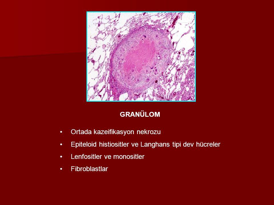 Ortada kazeifikasyon nekrozu Epiteloid histiositler ve Langhans tipi dev hücreler Lenfositler ve monositler Fibroblastlar GRANÜLOM