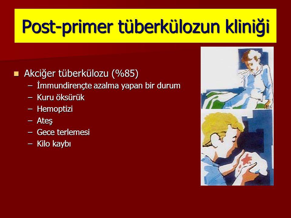 Post-primer tüberkülozun kliniği Akciğer tüberkülozu (%85) Akciğer tüberkülozu (%85) –İmmundirençte azalma yapan bir durum –Kuru öksürük –Hemoptizi –A