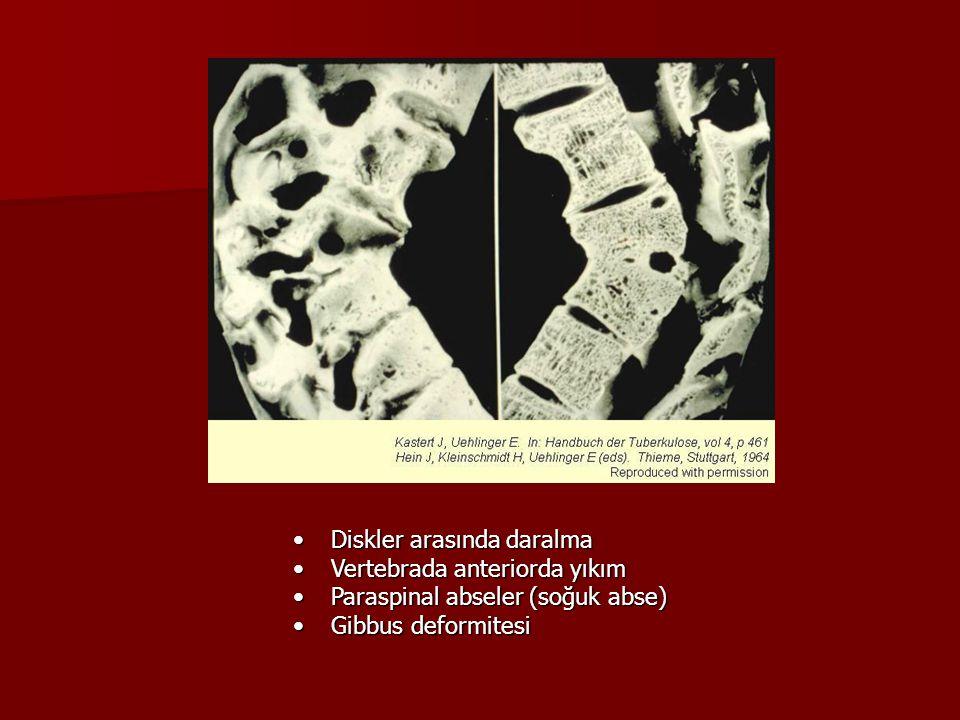 Diskler arasında daralmaDiskler arasında daralma Vertebrada anteriorda yıkımVertebrada anteriorda yıkım Paraspinal abseler (soğuk abse)Paraspinal abse
