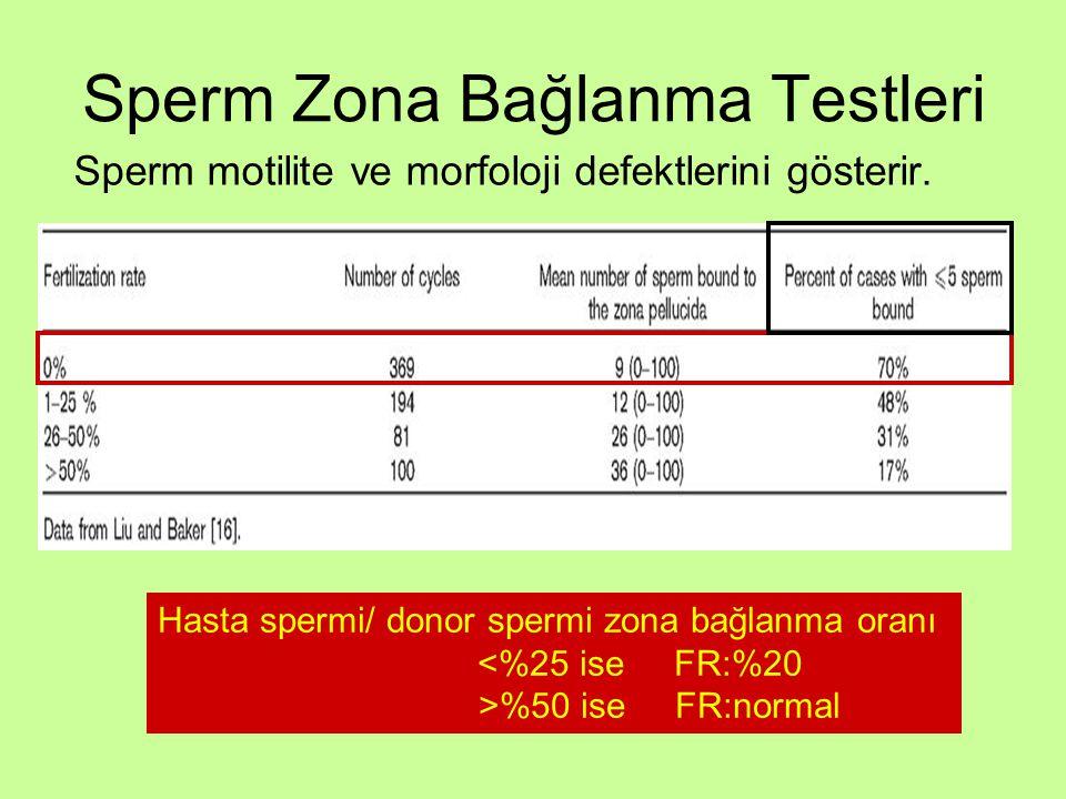 Sperm Zona Bağlanma Testleri Sperm motilite ve morfoloji defektlerini gösterir. Hasta spermi/ donor spermi zona bağlanma oranı <%25 ise FR:%20 >%50 is