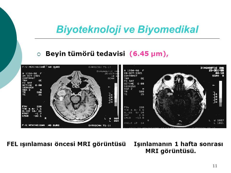 11 Biyoteknoloji ve Biyomedikal  Beyin tümörü tedavisi (6.45 µm), FEL ışınlaması öncesi MRI görüntüsü Işınlamanın 1 hafta sonrası MRI görüntüsü.