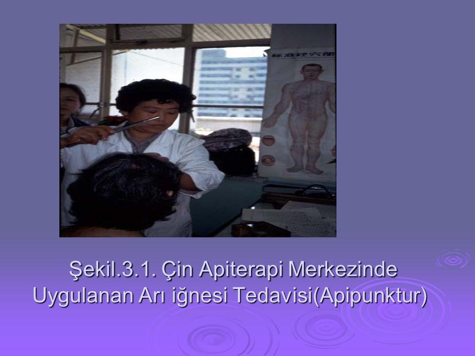 Şekil.3.1. Çin Apiterapi Merkezinde Uygulanan Arı iğnesi Tedavisi(Apipunktur) Şekil.3.1. Çin Apiterapi Merkezinde Uygulanan Arı iğnesi Tedavisi(Apipun