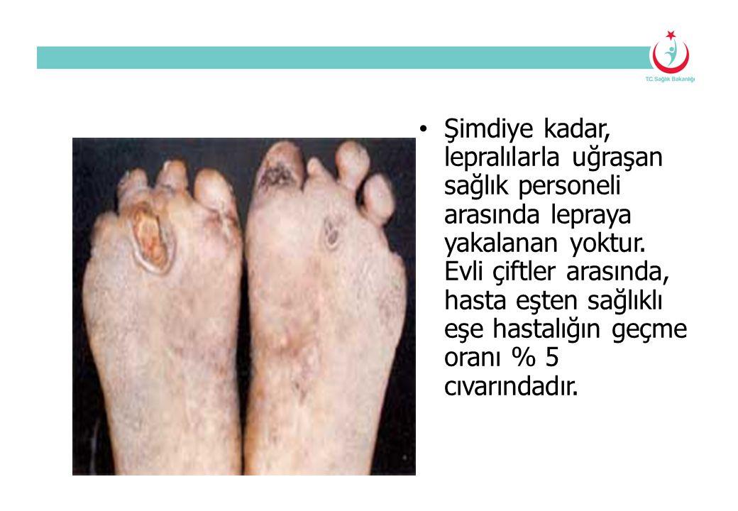 Şimdiye kadar, lepralılarla uğraşan sağlık personeli arasında lepraya yakalanan yoktur. Evli çiftler arasında, hasta eşten sağlıklı eşe hastalığın geç