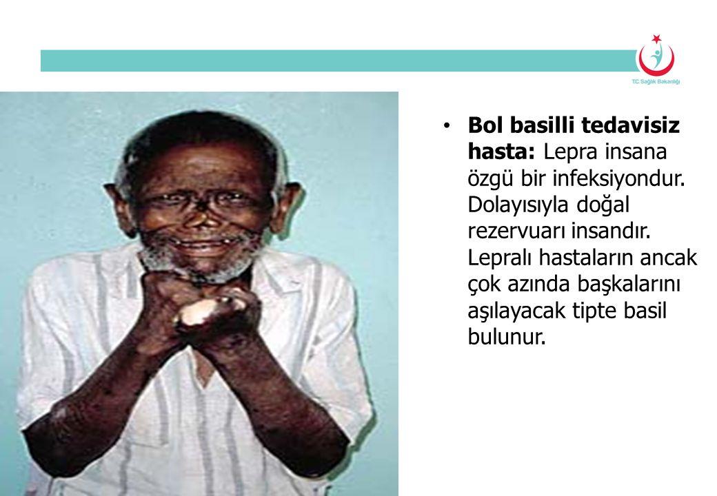 Bol basilli tedavisiz hasta: Lepra insana özgü bir infeksiyondur. Dolayısıyla doğal rezervuarı insandır. Lepralı hastaların ancak çok azında başkaları