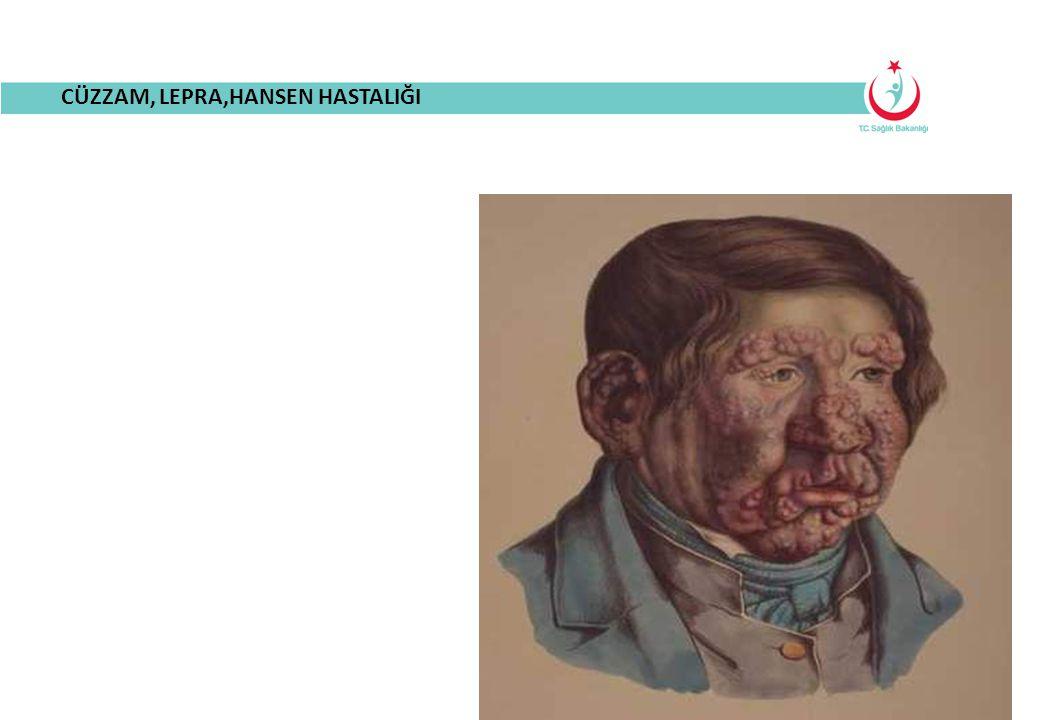 CÜZZAM HASTALIĞININ TANIMI 1876'da Armauer Hansen tarafından bulunan lepra basili tarafından oluşturulan kronik seyirli bir enfeksiyon hastalığıdır.