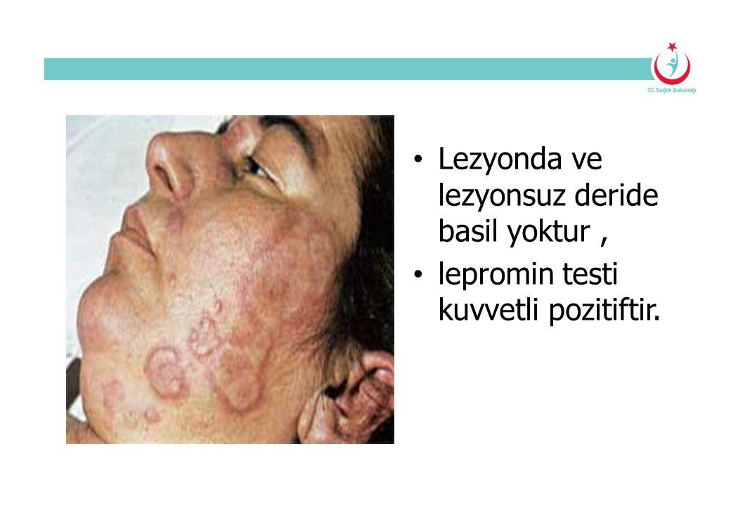 Lezyonda ve lezyonsuz deride basil yoktur, lepromin testi kuvvetli pozitiftir.
