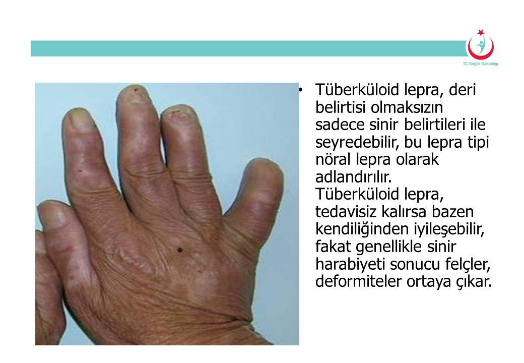 Tüberküloid lepra, deri belirtisi olmaksızın sadece sinir belirtileri ile seyredebilir, bu lepra tipi nöral lepra olarak adlandırılır. Tüberküloid lep