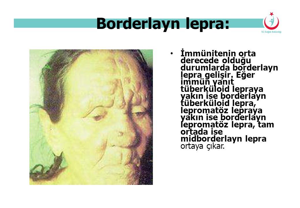 Borderlayn lepra: İmmünitenin orta derecede olduğu durumlarda borderlayn lepra gelişir. Eğer immün yanıt tüberküloid lepraya yakın ise borderlayn tübe