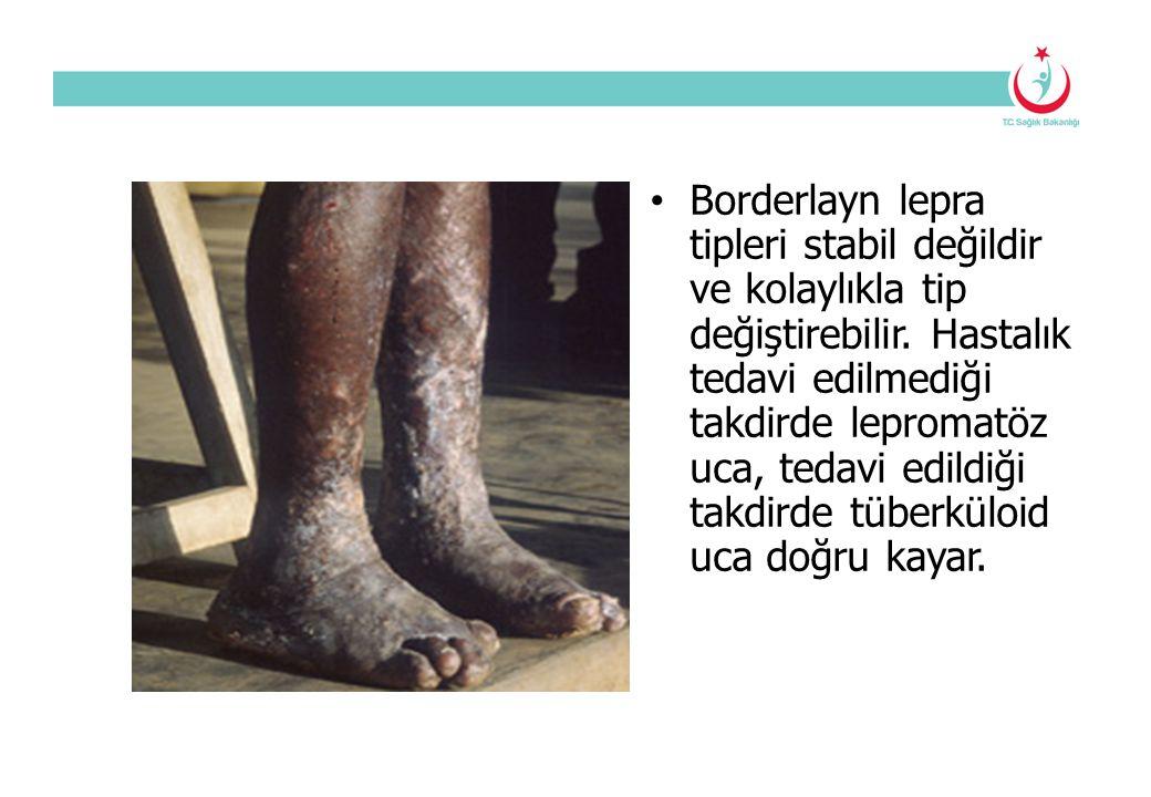 Borderlayn lepra tipleri stabil değildir ve kolaylıkla tip değiştirebilir. Hastalık tedavi edilmediği takdirde lepromatöz uca, tedavi edildiği takdird
