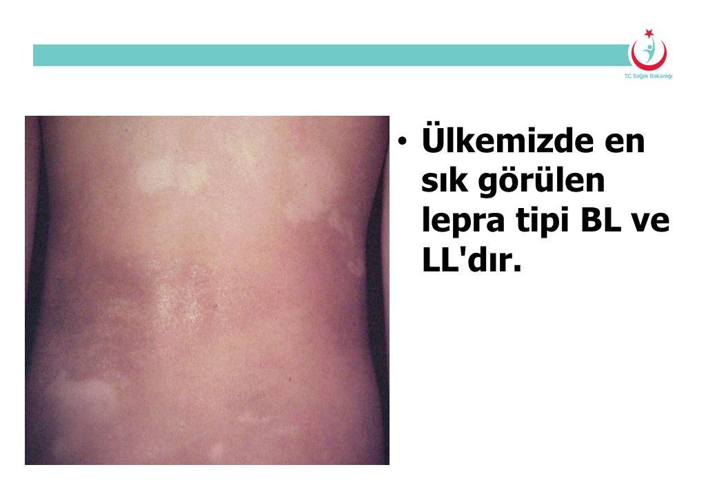 Ülkemizde en sık görülen lepra tipi BL ve LL'dır.