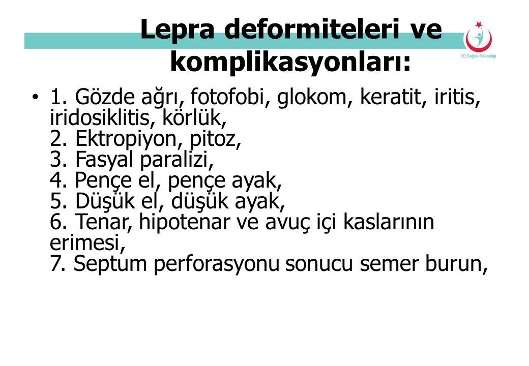 Lepra deformiteleri ve komplikasyonları: 1. Gözde ağrı, fotofobi, glokom, keratit, iritis, iridosiklitis, körlük, 2. Ektropiyon, pitoz, 3. Fasyal para