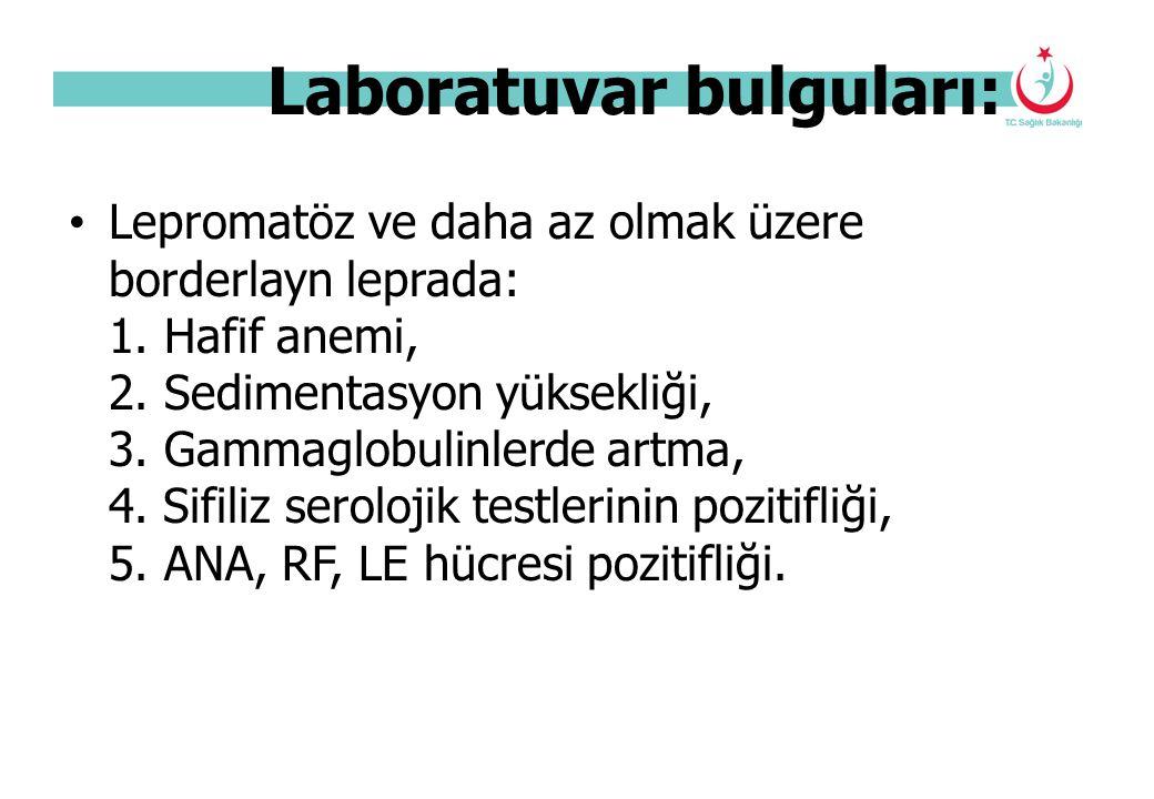 Laboratuvar bulguları: Lepromatöz ve daha az olmak üzere borderlayn leprada: 1. Hafif anemi, 2. Sedimentasyon yüksekliği, 3. Gammaglobulinlerde artma,