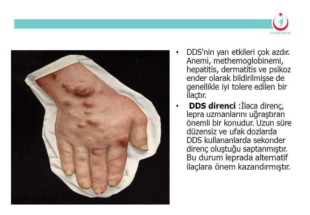 DDS'nin yan etkileri çok azdır. Anemi, methemoglobinemi, hepatitis, dermatitis ve psikoz ender olarak bildirilmişse de genellikle iyi tolere edilen bi