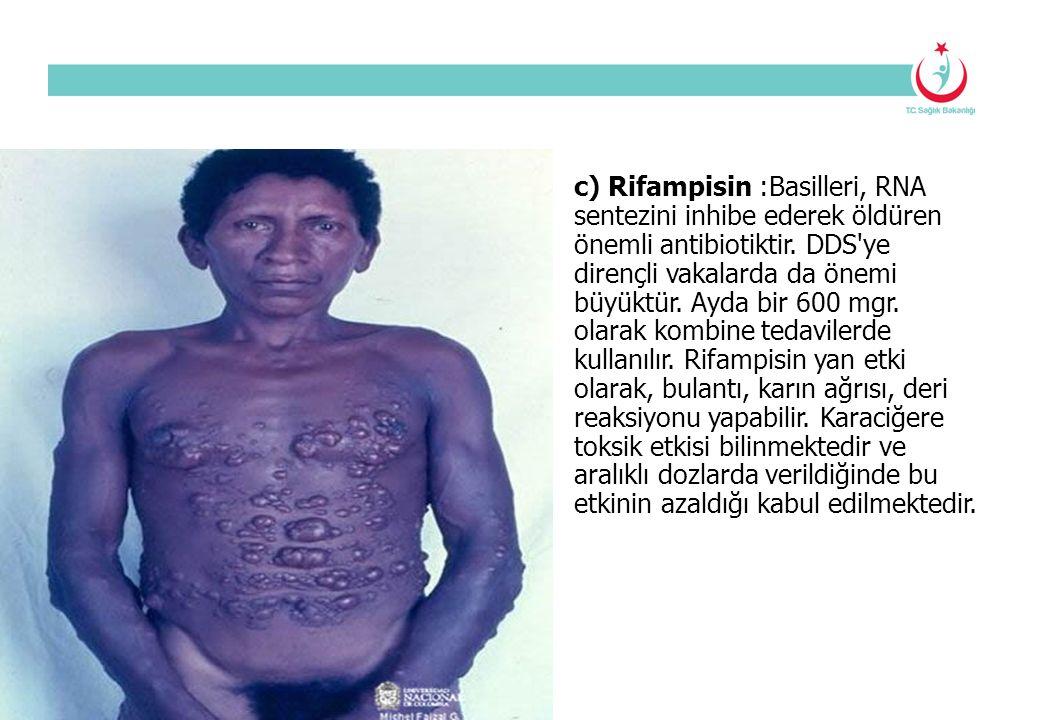 c) Rifampisin :Basilleri, RNA sentezini inhibe ederek öldüren önemli antibiotiktir. DDS'ye dirençli vakalarda da önemi büyüktür. Ayda bir 600 mgr. ola