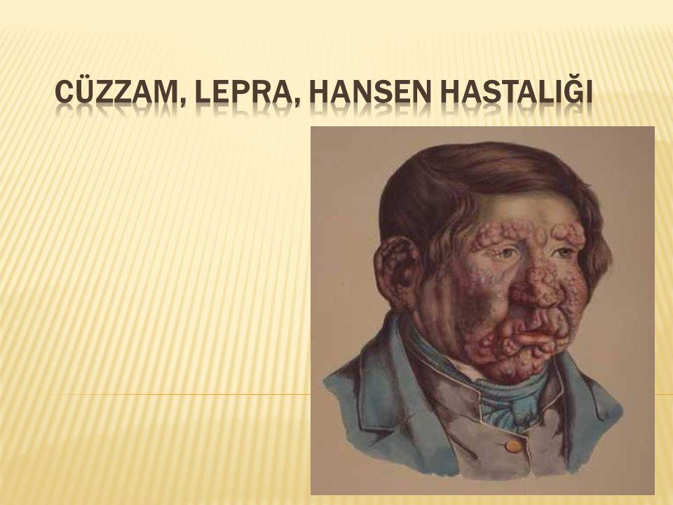 1876'da Armauer Hansen tarafından bulunan lepra basili tarafından oluşturulan kronik seyirli bir enfeksiyon hastalığıdır.