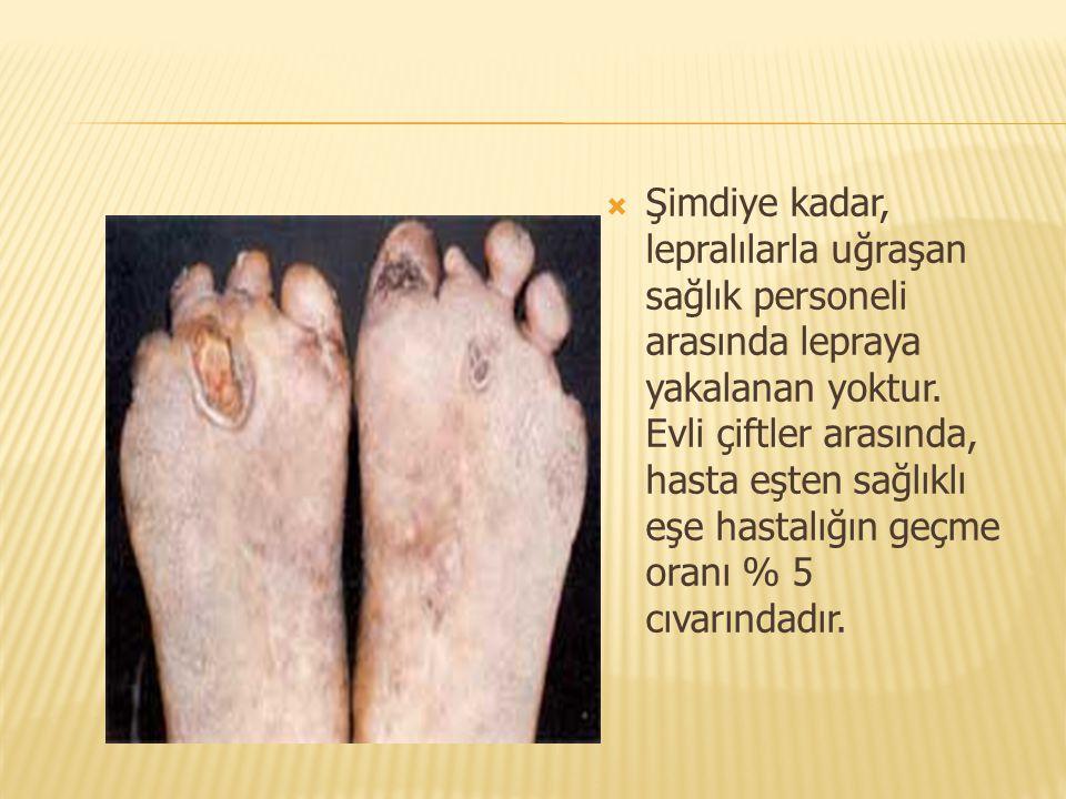 Şimdiye kadar, lepralılarla uğraşan sağlık personeli arasında lepraya yakalanan yoktur. Evli çiftler arasında, hasta eşten sağlıklı eşe hastalığın g