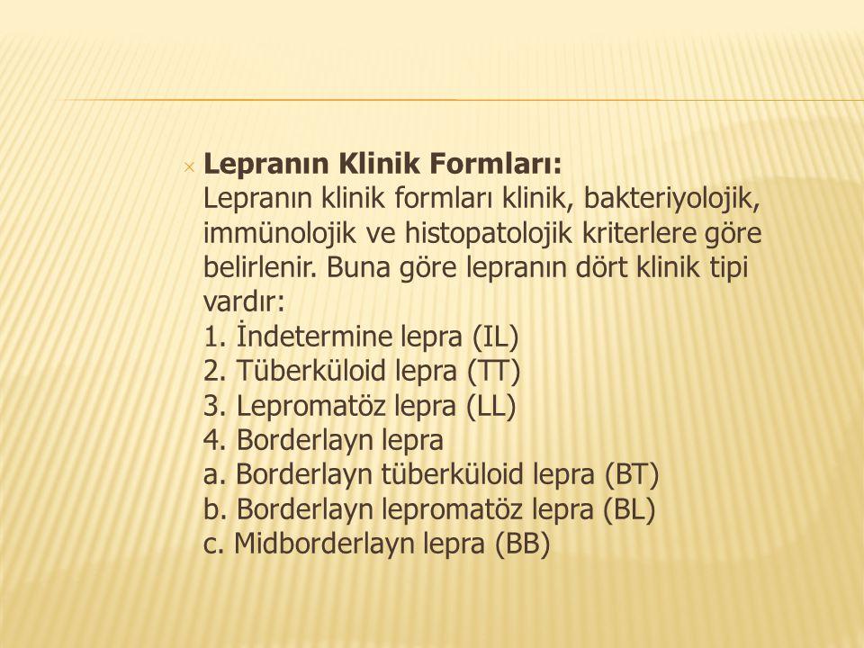  Lepranın Klinik Formları: Lepranın klinik formları klinik, bakteriyolojik, immünolojik ve histopatolojik kriterlere göre belirlenir. Buna göre lepra