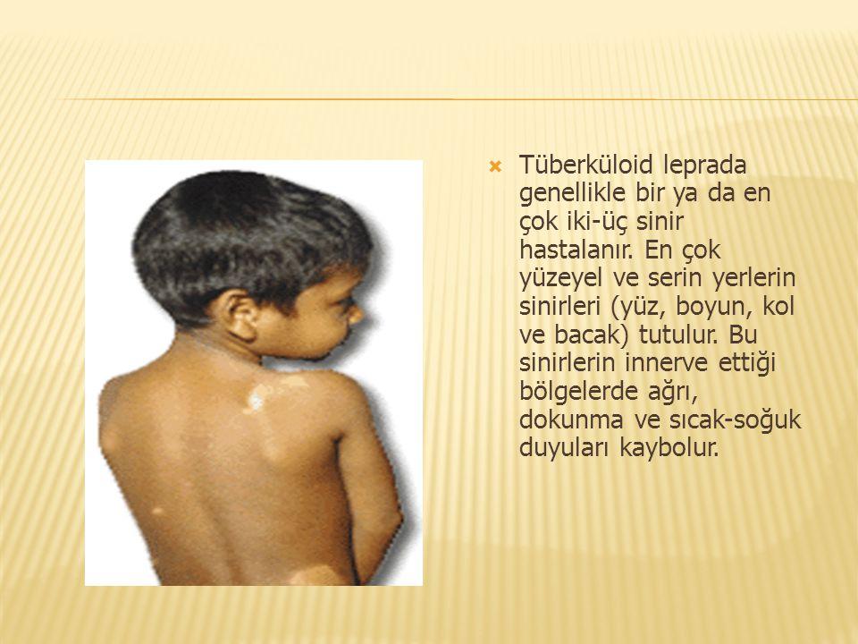  Tüberküloid leprada genellikle bir ya da en çok iki-üç sinir hastalanır. En çok yüzeyel ve serin yerlerin sinirleri (yüz, boyun, kol ve bacak) tutul