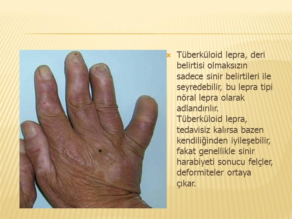  Tüberküloid lepra, deri belirtisi olmaksızın sadece sinir belirtileri ile seyredebilir, bu lepra tipi nöral lepra olarak adlandırılır. Tüberküloid l