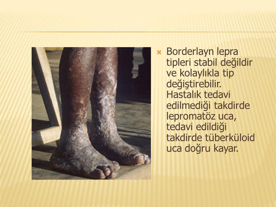  Borderlayn lepra tipleri stabil değildir ve kolaylıkla tip değiştirebilir. Hastalık tedavi edilmediği takdirde lepromatöz uca, tedavi edildiği takdi