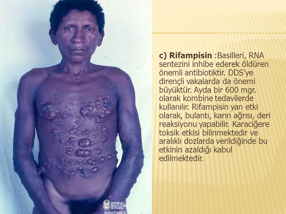  c) Rifampisin :Basilleri, RNA sentezini inhibe ederek öldüren önemli antibiotiktir. DDS'ye dirençli vakalarda da önemi büyüktür. Ayda bir 600 mgr. o