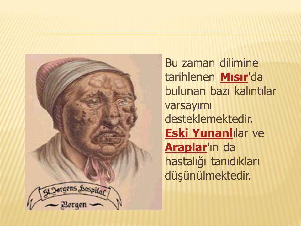 Bu konuyla özel olarak uğraşan yerler İstanbul, Ankara ve Elazığ da 3 tane özel dal hastanesi vardır.