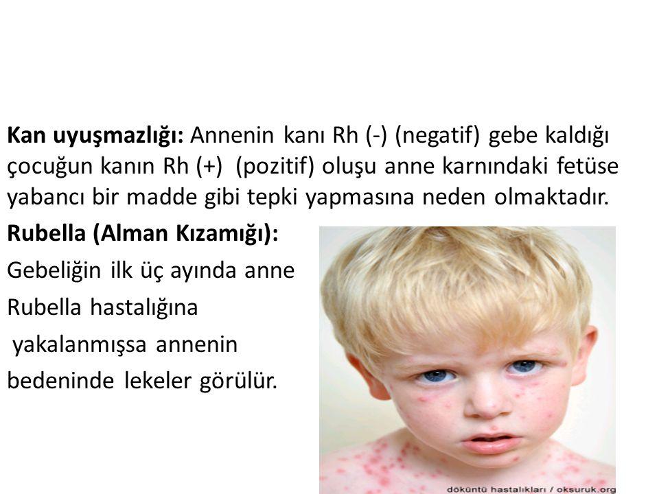 Kan uyuşmazlığı: Annenin kanı Rh (-) (negatif) gebe kaldığı çocuğun kanın Rh (+) (pozitif) oluşu anne karnındaki fetüse yabancı bir madde gibi tepki y