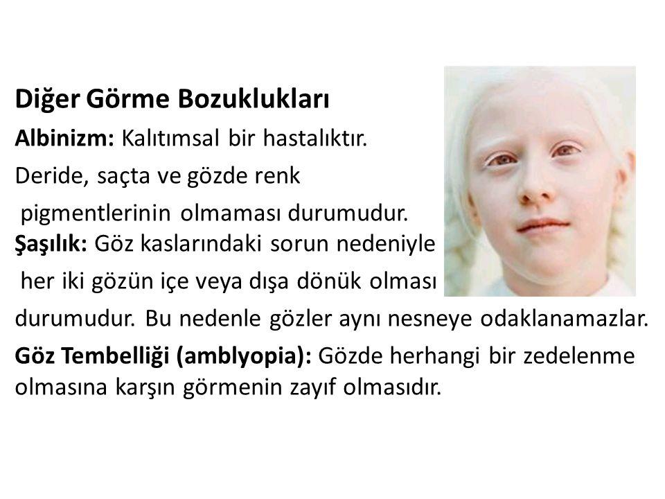 Diğer Görme Bozuklukları Albinizm: Kalıtımsal bir hastalıktır. Deride, saçta ve gözde renk pigmentlerinin olmaması durumudur. Şaşılık: Göz kaslarındak