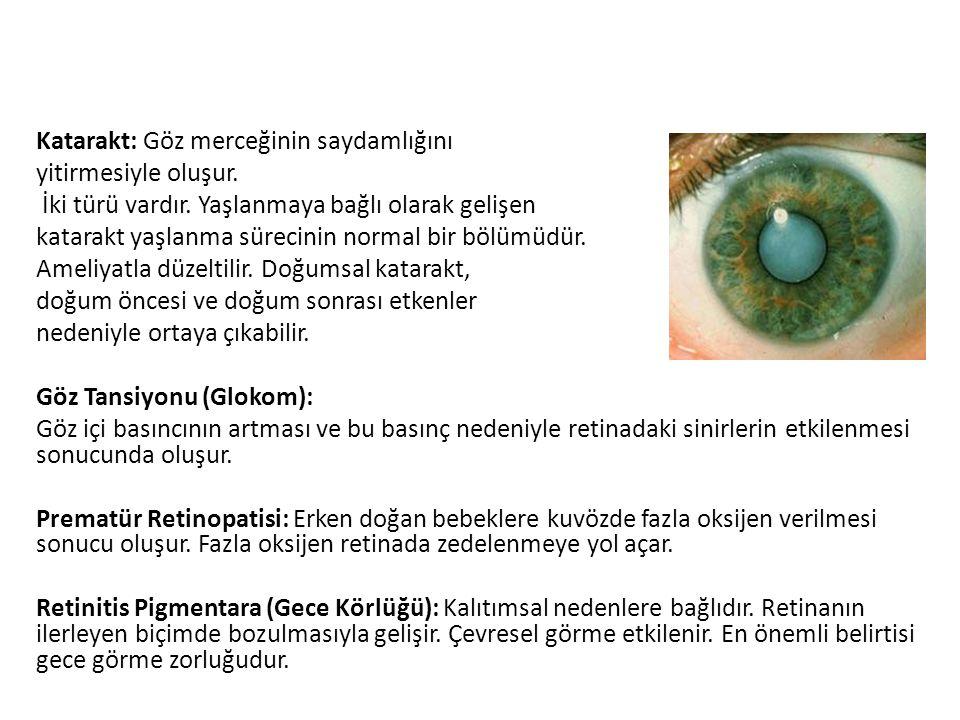 Katarakt: Göz merceğinin saydamlığını yitirmesiyle oluşur. İki türü vardır. Yaşlanmaya bağlı olarak gelişen katarakt yaşlanma sürecinin normal bir böl