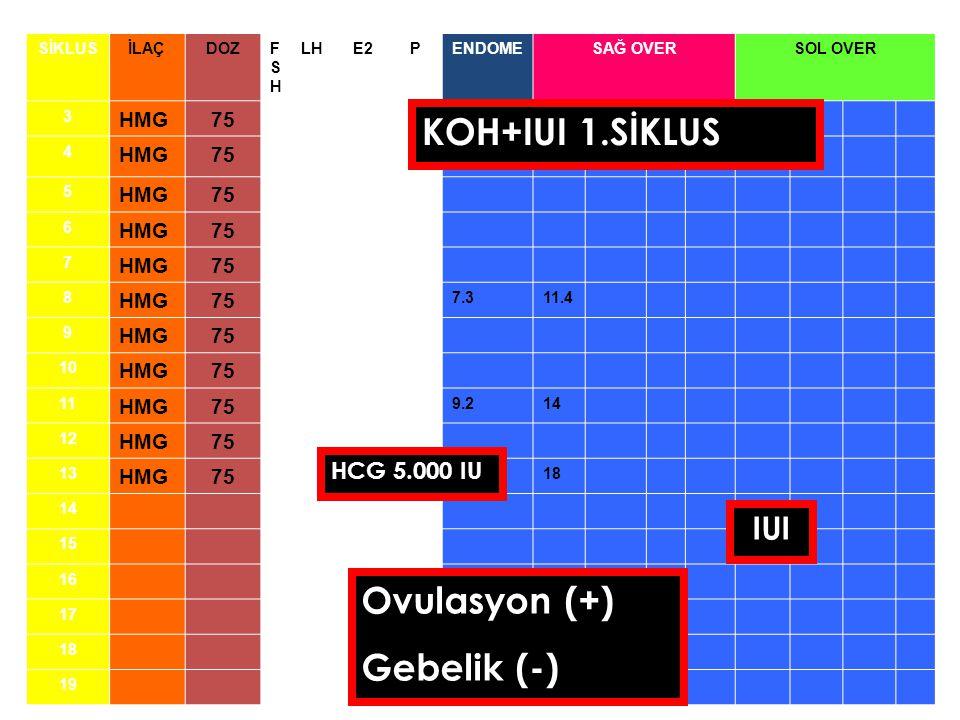 SİKLUSİLAÇDOZFSHFSH LHE2PENDOMESAĞ OVERSOL OVER 3 HMG75 4 HMG75 5 HMG75 6 HMG75 7 HMG75 8 HMG75 7.311.4 9 HMG75 10 HMG75 11 HMG75 9.214 12 HMG75 13 HMG75 18 14 15 16 17 18 19 HCG 5.000 IU IUI Ovulasyon (+) Gebelik (-) KOH+IUI 1.SİKLUS