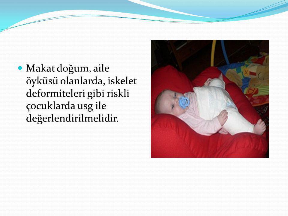 Makat doğum, aile öyküsü olanlarda, iskelet deformiteleri gibi riskli çocuklarda usg ile değerlendirilmelidir.