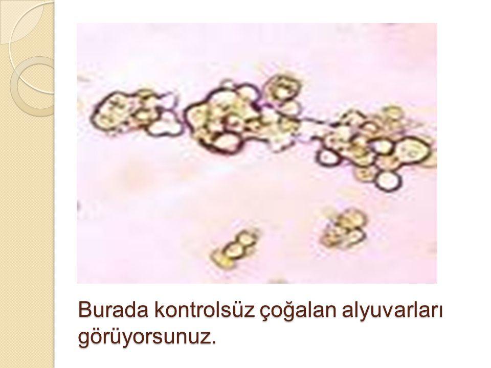 Oysa artık amaç, kanser hücrelerinin kendisi değil, kanser hücresinin lojistiğini yani yayılma yollarını yok etmek.