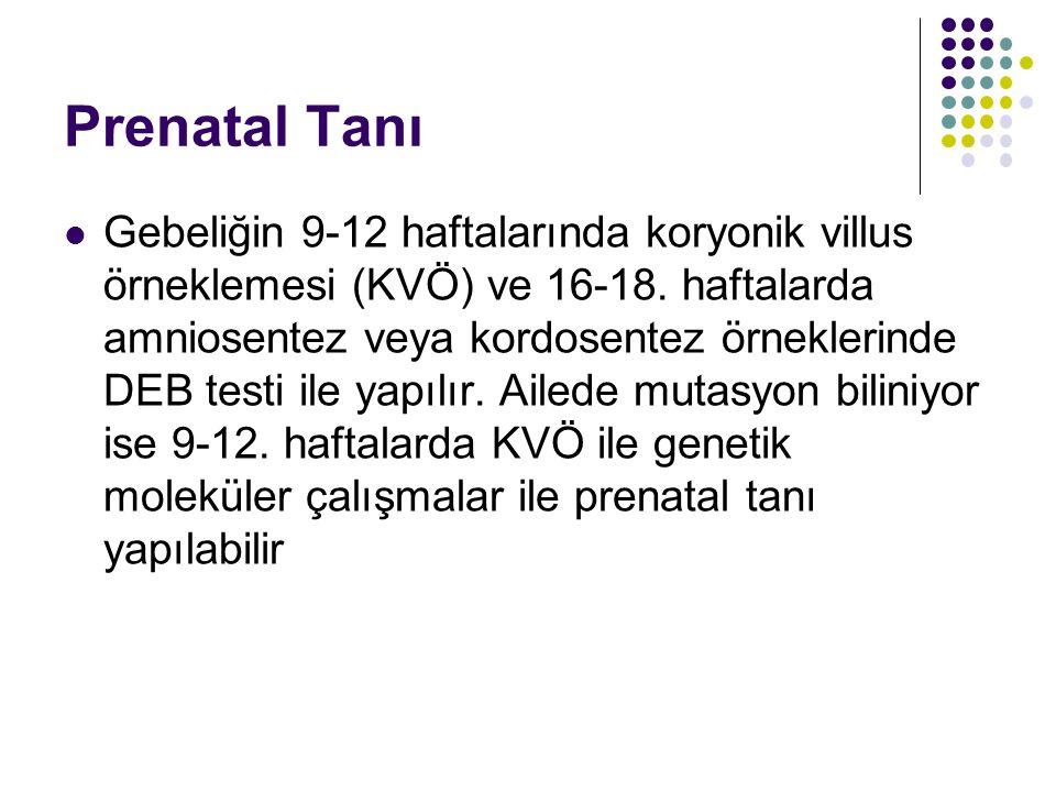 Prenatal Tanı Gebeliğin 9-12 haftalarında koryonik villus örneklemesi (KVÖ) ve 16-18. haftalarda amniosentez veya kordosentez örneklerinde DEB testi i