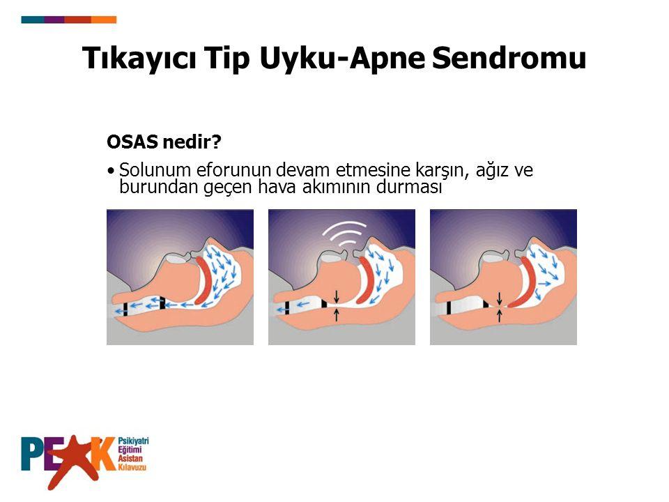 OSAS nedir? Solunum eforunun devam etmesine karşın, ağız ve burundan geçen hava akımının durması Tıkayıcı Tip Uyku-Apne Sendromu