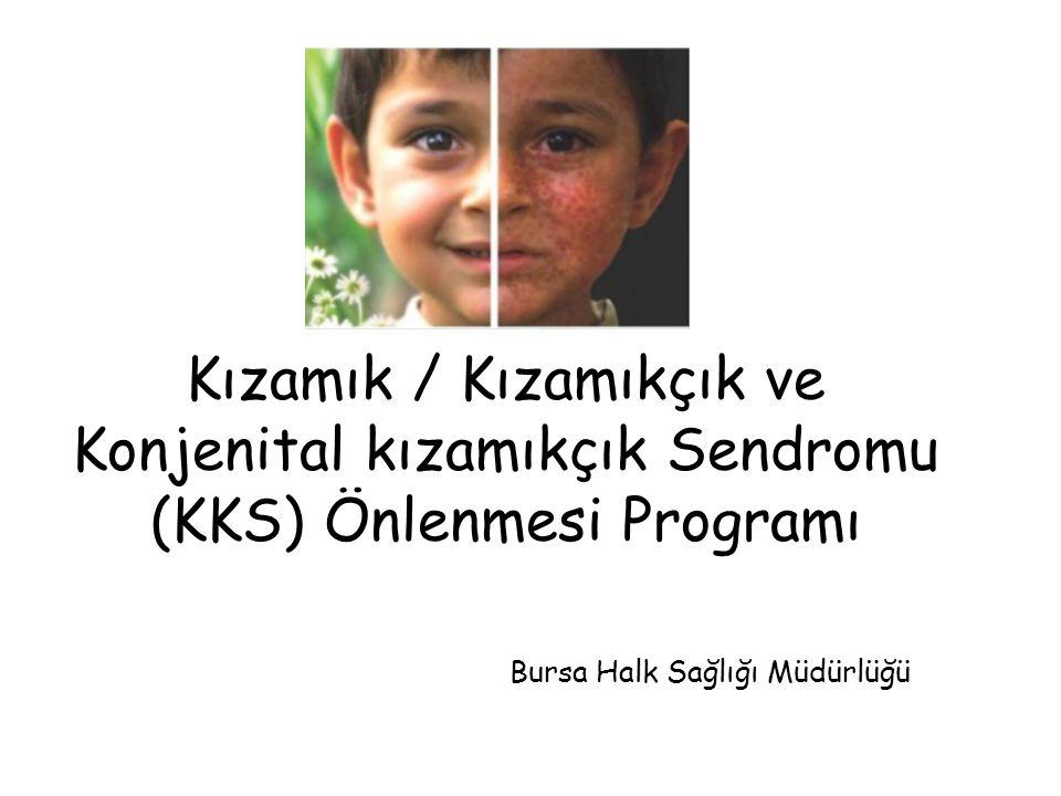 Kızamık / Kızamıkçık ve Konjenital kızamıkçık Sendromu (KKS) Önlenmesi Programı Bursa Halk Sağlığı Müdürlüğü