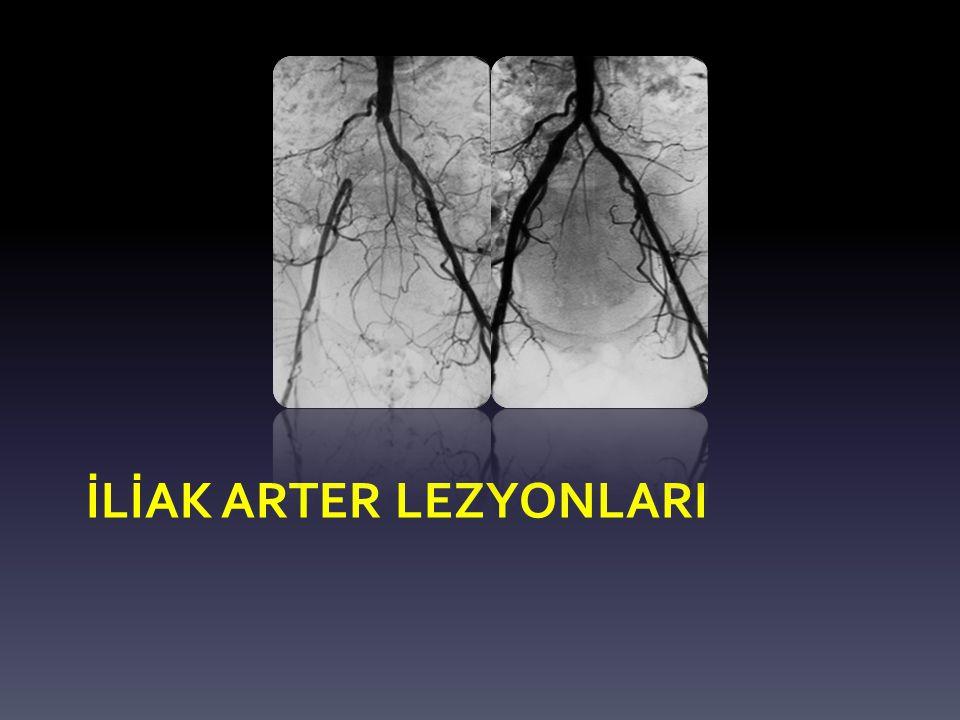 İLİAK ARTER LEZYONLARI