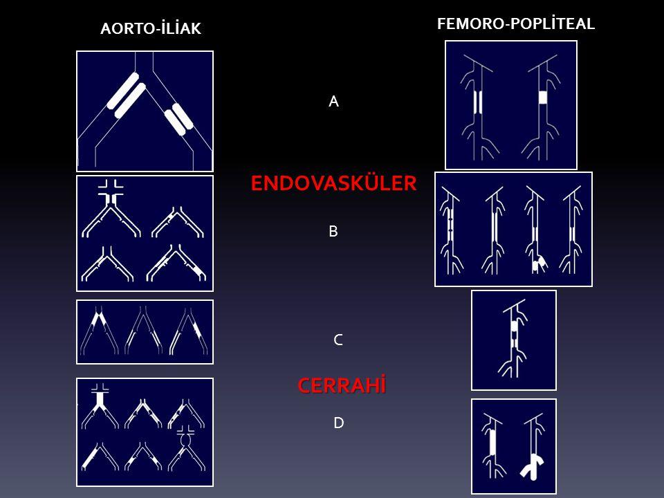 AORTO-İLİAK FEMORO-POPLİTEAL A B C D ENDOVASKÜLER CERRAHİ