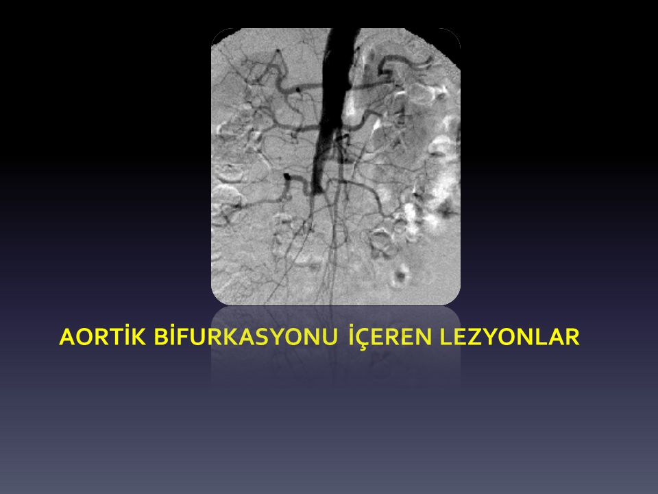 ABF vs AİS Burke CR, et al Annals of Vasc Surg 2010 118 AFB vs 174 AIS – AFB > AIS: pre-postprosedürel ABI – AFB < AIS: majör-minör komplikasyonlar – Mortalite, ampütasyon, revizyon sonuçları açısından fark yok